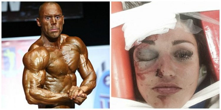 Campione di body building massacra la fidanzata